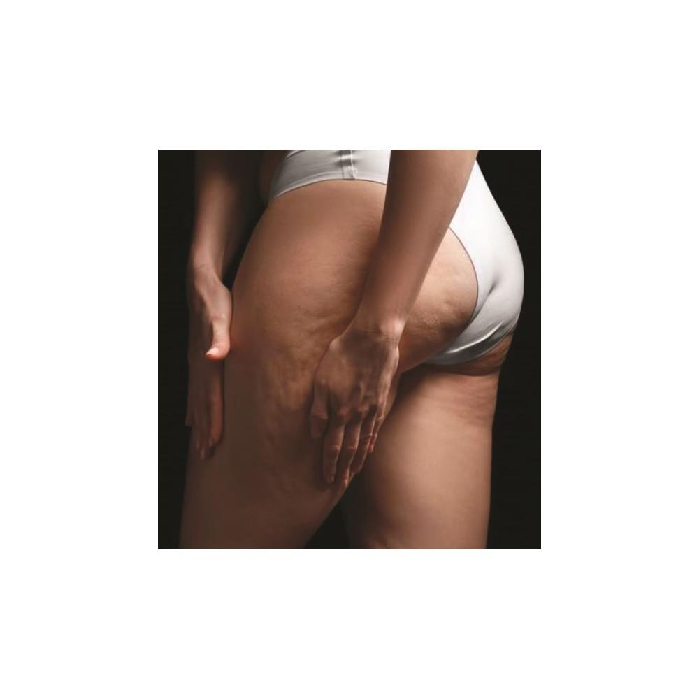 Ritenzione Idrica & Cellulite