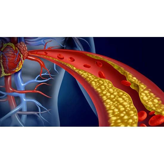 Colesterolo (Pulizia dei...